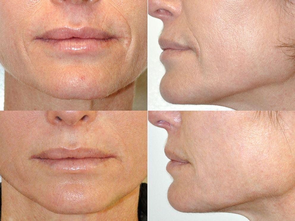 skin lifting facial