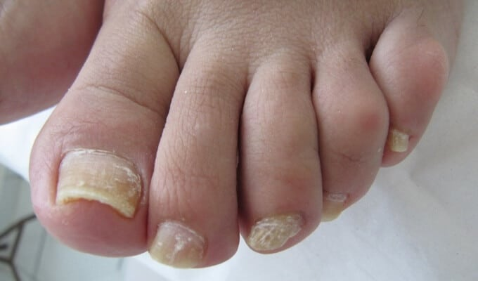 ¿Hongos en las uñas? ¿Por qué aparecen y cómo prevenir?