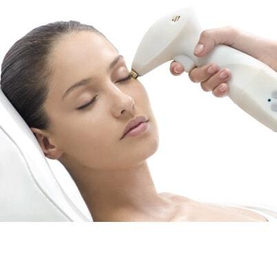 Radiofrecuencia Facial Reaction™