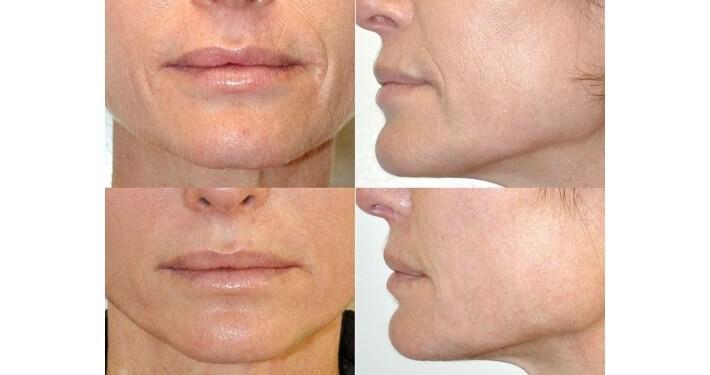 ¿Lifting facial sin cirugía? Sí existe y se llama Fotona 4D