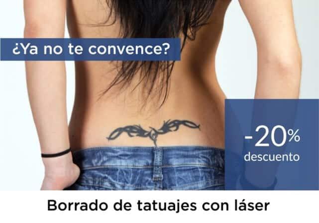 Promoción Borrado de Tatuajes