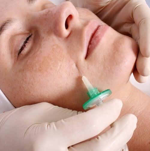 Carboxiterapia facial cuanto dura