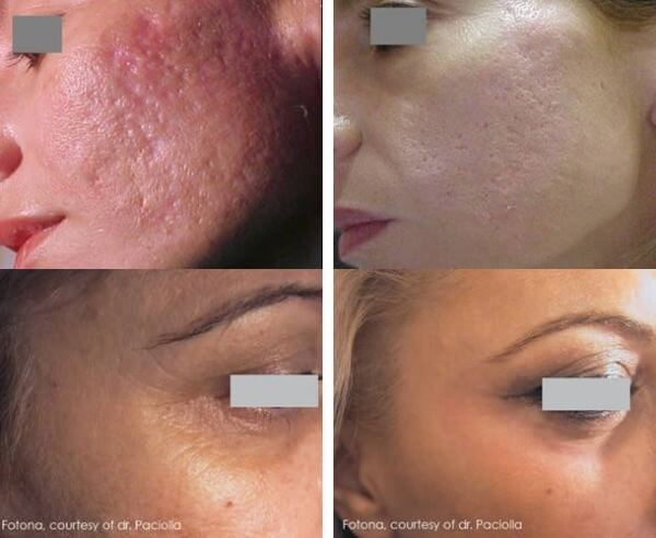 resurfacing-laser-antes-y-despues