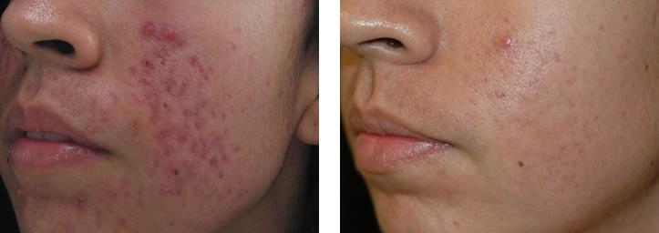 spectra-acne-antes-y-despues