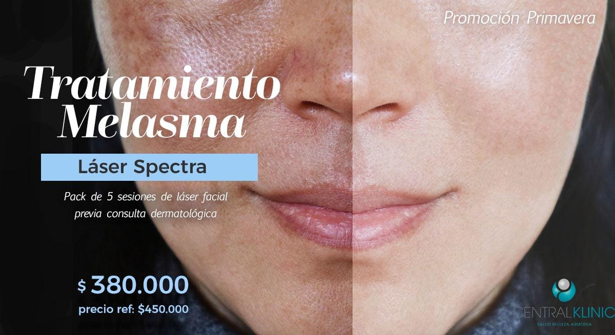 Promoción Tratamiento Melasma