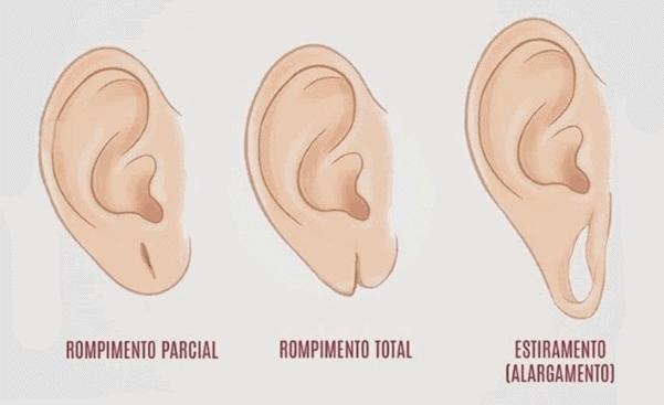 Tipos de Lobuloplastía