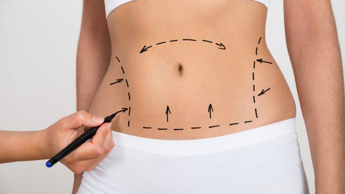 Todo lo que debes saber para evitar riesgos en la Liposucción