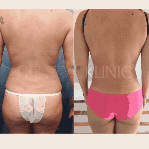 Resultados Liposucción