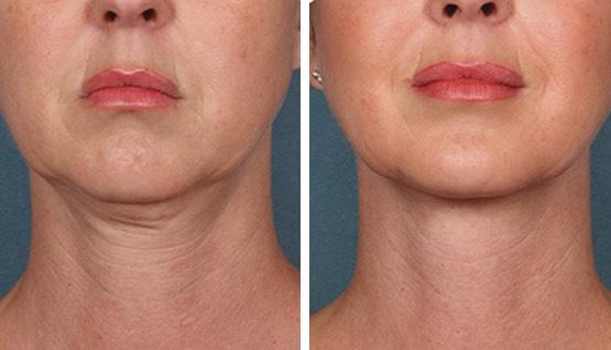 Antes y después de 1 sesión (3 meses)