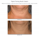 Antes y Después 12 Semanas Triple Firming Neck Cream